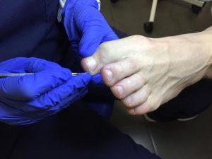 tratamiento uñas encarnadas